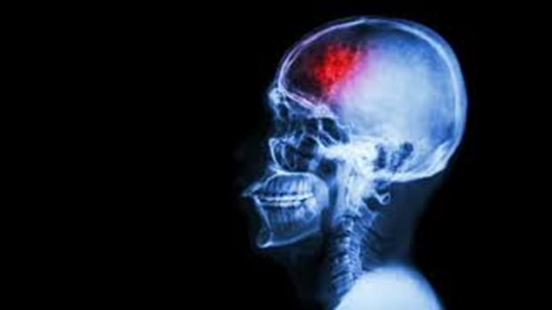 Toowoomba Residents More at Risk Suffering from a Stroke