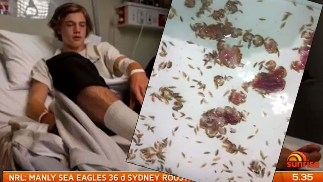 Father Of Teen Attacked By Sea Critters Posts Horrific Video Of Sea Lice Eating Raw Steak