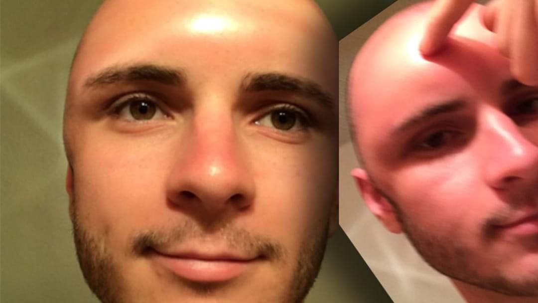 Poor Bloke's Bald Sunburned Head Swells So Much, He Can Poke Dents In It
