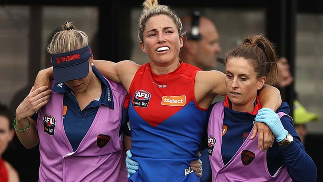 Hickey Has Torn Her ACL