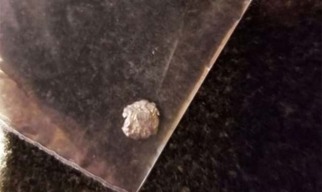 Bullet fragment removed from student's neck