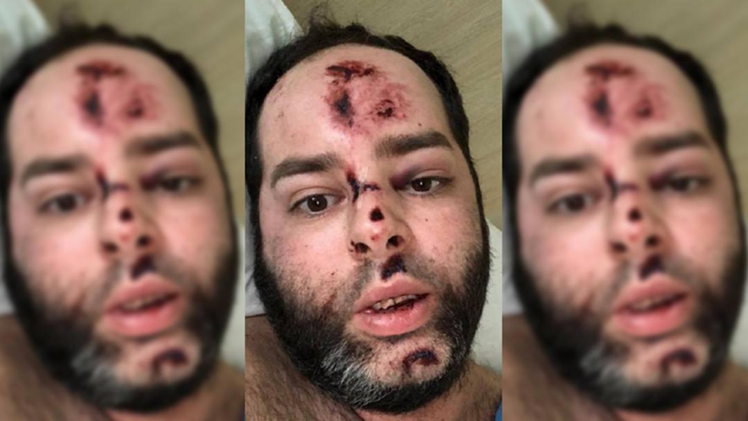 Pedestrian Shares Graphic Injuries After Woy Woy Crash