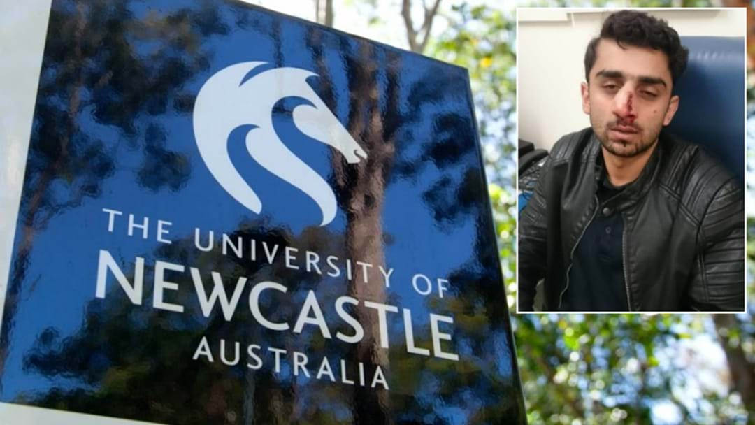 Newcastle Uni Student Bashed With Knuckle Dusters