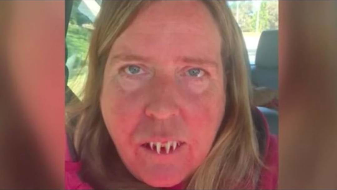 Woman Superglues Zombie Teeth To Actual Teeth, Regrets It Instantaneously