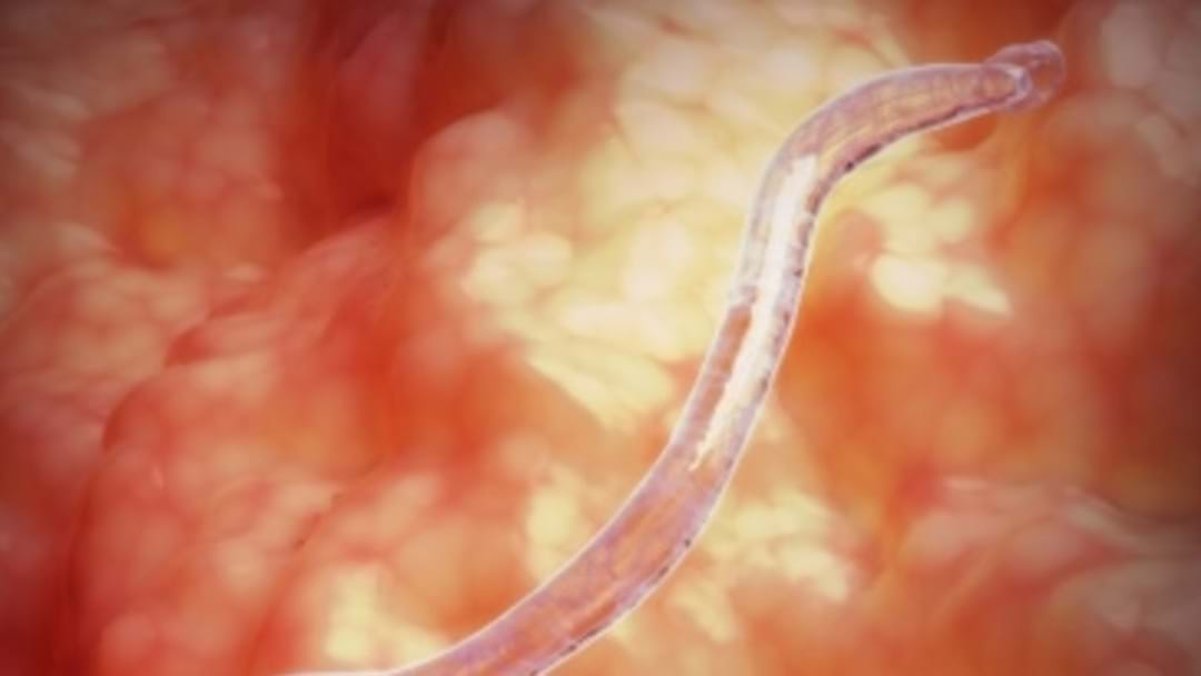 Could WORMS Cure Coeliac Disease?